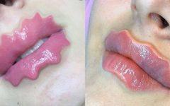 """""""Lábios do diabo"""" a nova e controversa tendência estética que é perigosa"""
