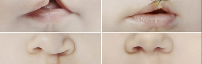Cientistas descobrem que o cordão umbilical pode ser usado para reparar o lábio leporino