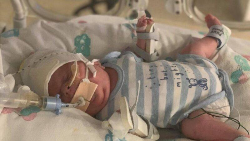 O 'bebê guerreiro' que nasceu com 765 gramas e sobreviveu ao coronavírus e à sepse