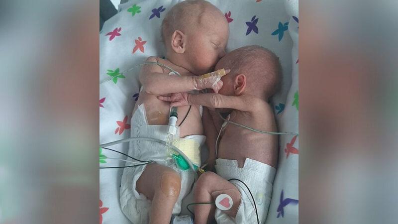 Gêmeos separados no nascimento 'se abraçam e dão as mãos'