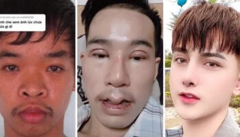 """Jovem faz 9 cirurgias faciais para encontrar um emprego, o rejeitaram porque consideravam seu rosto """"feio"""""""