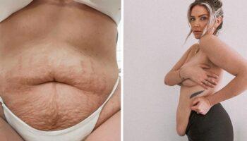 Mulher é criticada por compartilhar seu verdadeiro corpo com estrias e celulite, pediram para ela 'se cobrir'