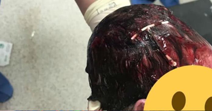 Bebê nasce com um DIU preso à cabeça e sua história se torna viral