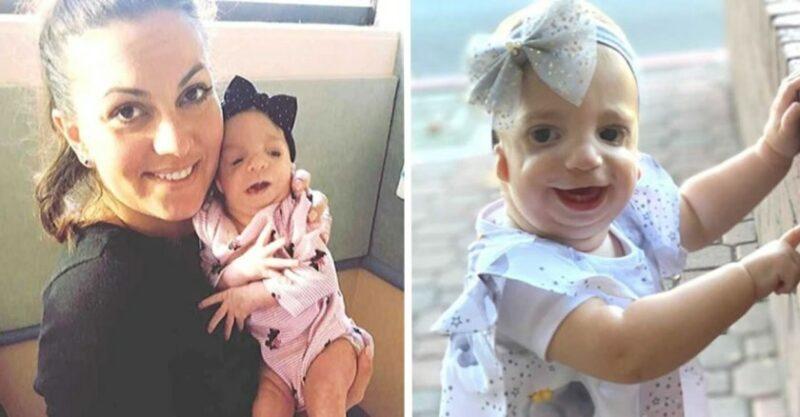 """""""Ninguém me parabenizou pela chegada da minha filha"""", desabafa mãe de bebê com síndrome rara"""